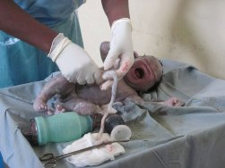 nursing medical electives Kenya: helping deliver a baby.